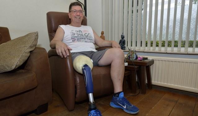Gerard van den Elsen met zijn prothese  | Fotonummer: c162f7