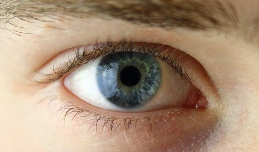 Heeft u een oogaandoening en ervaart u drempels als u uit eten gaat?