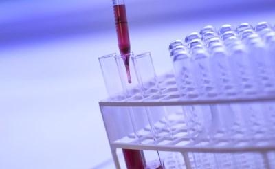 Laboratoriumuitslagen Jeroen Bosch Ziekenhuis verwisseld