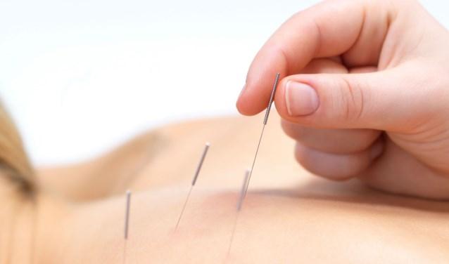 Acupunctuur wordt ingezet om klachten te verlichten en ziekten te genezen.